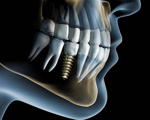 i_implantologia