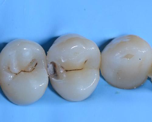 i_odontoiatria_conserv